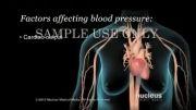 بیماری فشار خون چیست(دوبله)