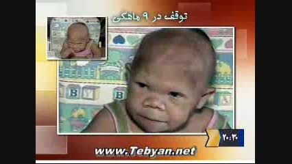 زن 30 ساله نوزادنما!!