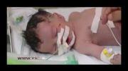 تولد نوزاد فلسطینی پس از شهادت مادر + عکس و فیلم