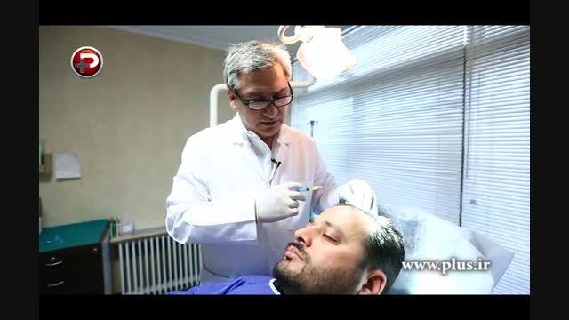 موهایتان دچار ریزش شده؟ PRP (پی آر پی) درمانی برای مو