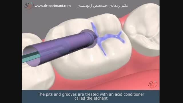 سیلانت و محافظت در برابر پوسیدگی دندان