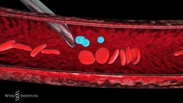 درمان بیماران با استفاده از ذرات نانو حاوی دارو