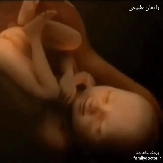 وضعیت نوزاد در زایمان طبیعی