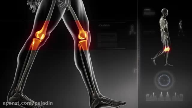 ابزار توانبخشی زانو برای ورزشکاران و آسیب های زانو