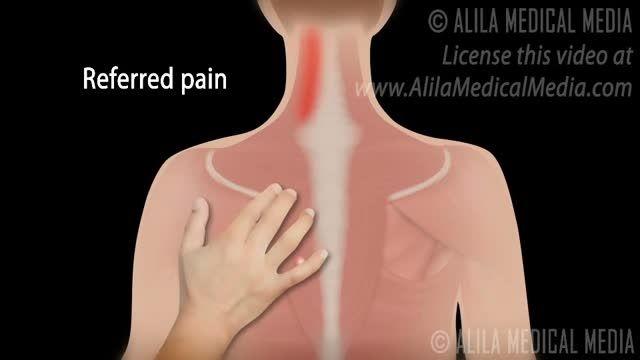 سندرم  درد مایوفاشیال
