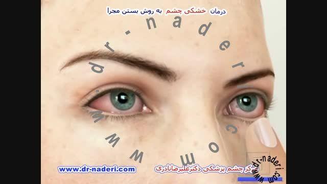 درمان خشکی چشم با بستن مجرای- مرکز چشم پزشکی دکتر نادری