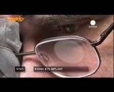 موفقیت محققان در کاشت چشم مصنوعی بیونیک