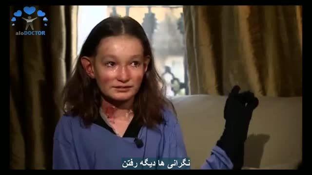 بیماری دختری که روزی بدون درد را به خاطر ندارد