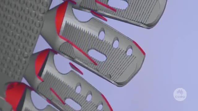 جراحی بیماران سرطانی با دنده ساخته شده پرینترسه بعدی