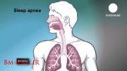 درمان آپنه یا ایست تنفسی در هنگام خواب-مهندسی پزشکیBm-Eng.iR
