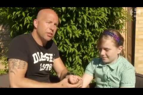 دست مصنوعی برای دختری که بدون انگشت به دنیا آمد