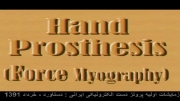دست الکترونیکی ایرانی-دستاورد