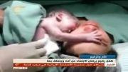 وابستگی شدید نوزاد به مادر
