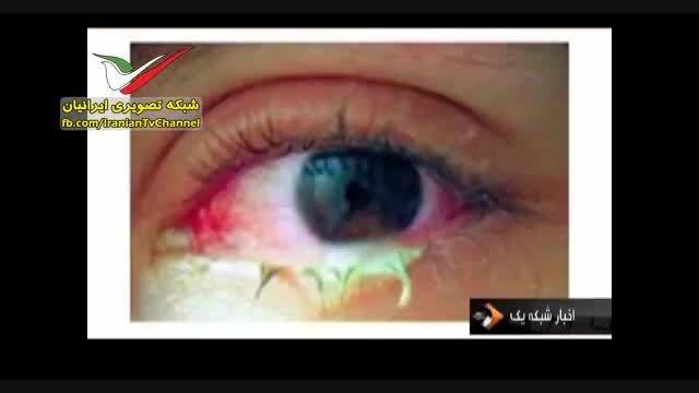 کشته شدن دختر ایرانی بر اثر استفاده از لنز تقلبی