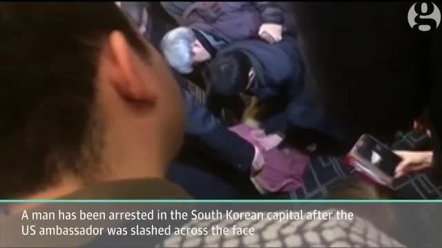حمله فرد کره ای به سفیر آمریکا و مجروح کردن او با تیغ