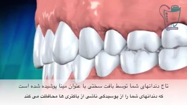 پوسیدگی دندان و افزایش سن | سیمادنت