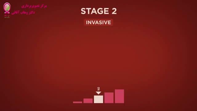 سرطان پستان - قسمت سیزدهم - مراحل سرطان - مرحله 2