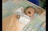 افزایش میزان تولد نوزادان ناقص