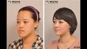 جراحی زیبایی و پلاستیک صورت ، بینی و چانه