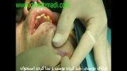 عمل جراحی پروتز چانه