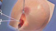 درمان سرطان سینه با روش پرتودرمانی IORT