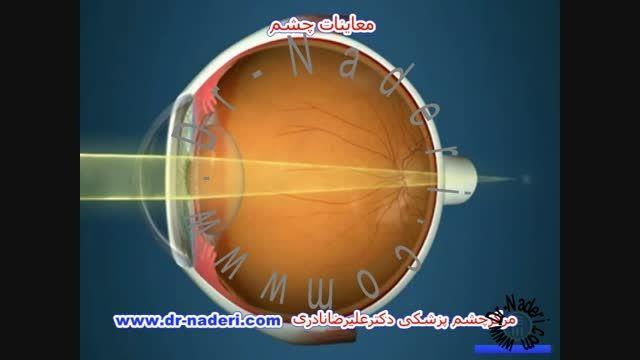 اهمیت معاینات چشم-مرکز چشم پزشکی دکتر علیرضا نادری