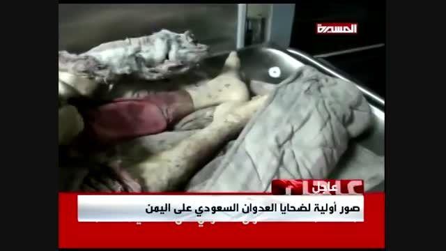 نخستین ویدئو از قربانیان تجاوز رژیم سعودی به یمن