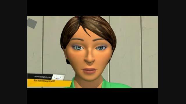 جراحی بینی(رینوپلاستی)