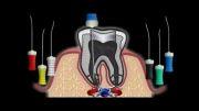 درمان ریشه دندان دندانپزشکی آبان