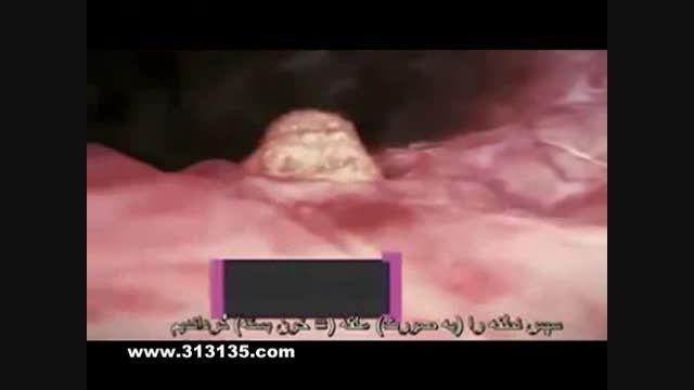 کشف یک معجزه قرآنی درباره جنین