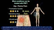 پی آر پی (PRP)وپلاکت درمانی وسلول درمانی در  آرتروز مفصل