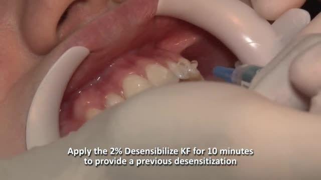آموزش سفید کردن دندان - ویژه دانشجویان دندان پزشکی