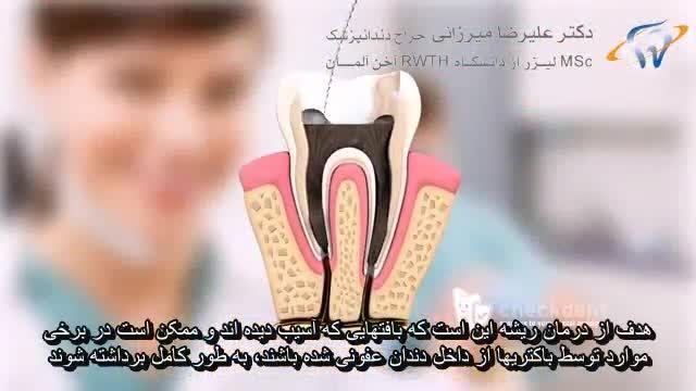 درمان ریشه یا روت کانال تراپی-انیمشن دندانپزشکی