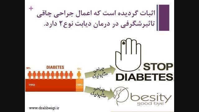 جراحی متابولیک - درمان دیابت تیپ 2