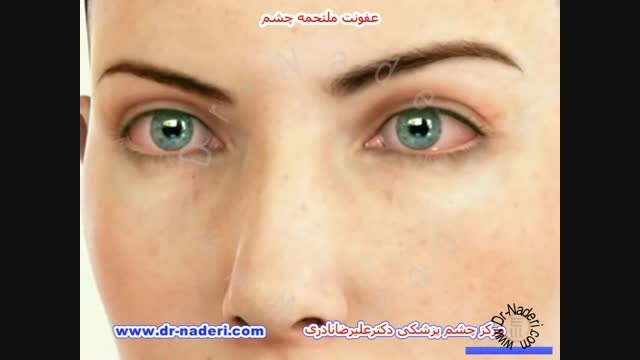 عفونت ملتحمه یا کنژنکتیویت - مرکز چشم پزشکی دکتر نادری