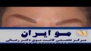 کاشت ابرو در کلینیک کاشت موی دکتر رضائی