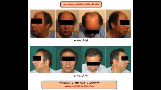 بانک مو در پشت سر در کاشت موی طبیعی