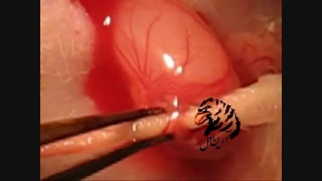 نحوه تزریق سلول های بنیادی به داخل تخمدان با آمپول