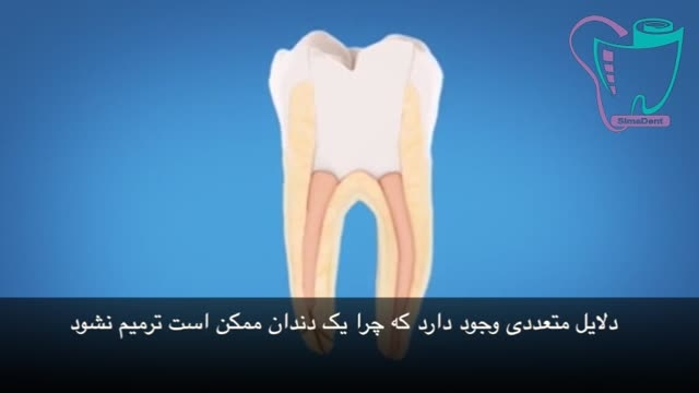 درمان مجدد ریشه دندان | سیمادنت