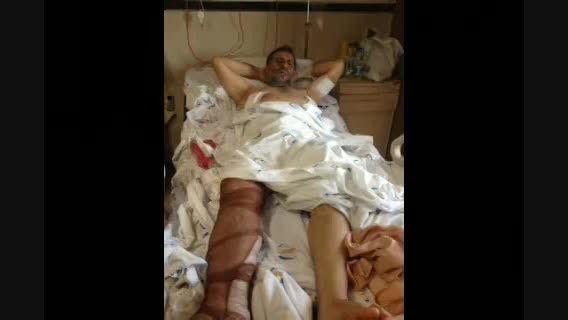 سرداری که قبل از بشهادت رسیدن توسط داعش، نجات یافت
