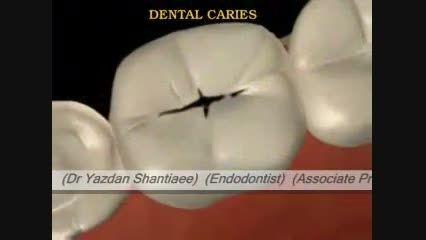 1) درمان ریشه دندان