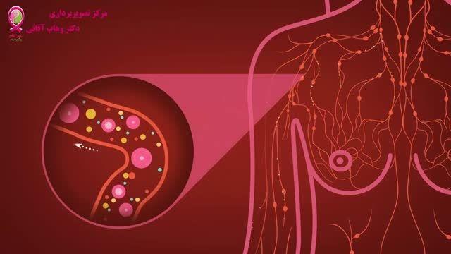 سرطان پستان - قسمت دوم - آناتومی پستان
