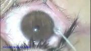 جراحی زیبایی تغییر رنگ چشم