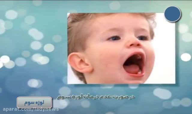 بیماری لوزه ی سوم در کودکان و خطرات جدی آن