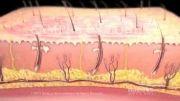 سوختگی،طبقه بندی و درمان آن چیست (دوبله)