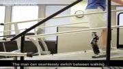 اولین پای مصنوعی رباتیک که کاملا خودکار عمل می کند