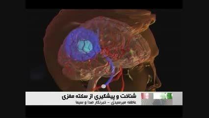 همه چیز در مورد سکته مغزی
