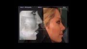 فیلم عمل جراحی واقعی بینی الناز شاکردوست