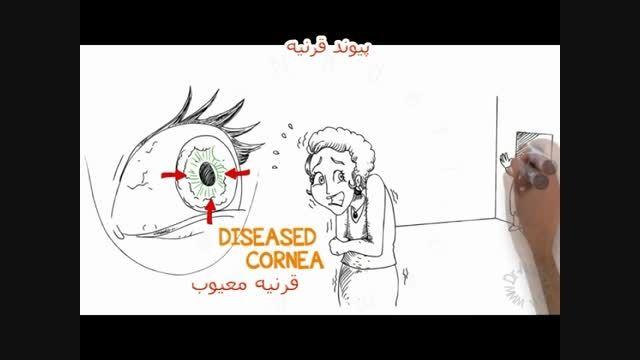 مروری کلی بر پیوند قرنیه - سایت چشم پزشکی دکتر نادری