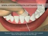 طریقه صحیح نخ دندان کشیدن به صورت انیمیشن